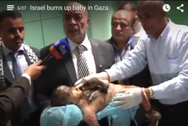 Israel burns baby